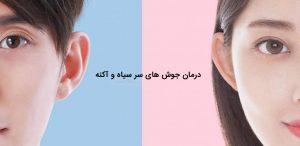 دستگاه پاکسازی صورت